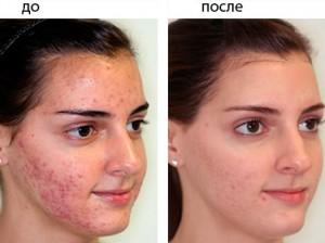 mederma-acne